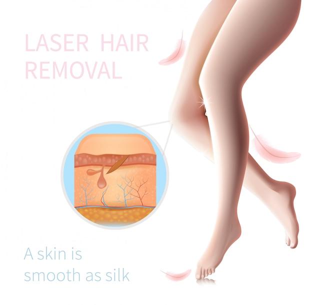 Peau avec follicule endommagé, épilation au laser Vecteur Premium