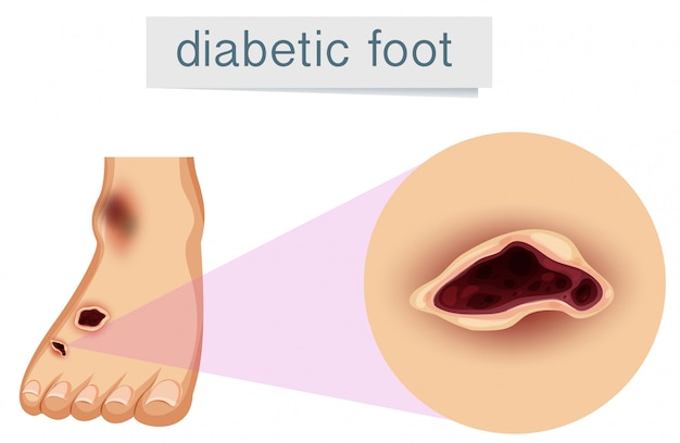Un pied humain avec un diabétique Vecteur gratuit