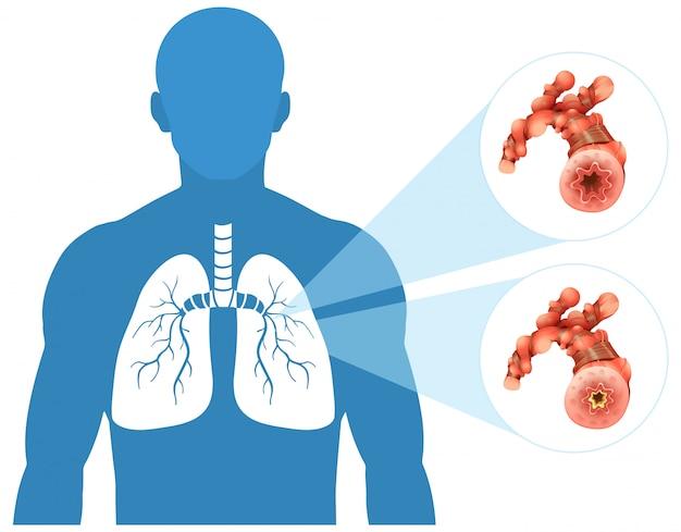 Poumon Humain Sur Fond Blanc Vecteur gratuit