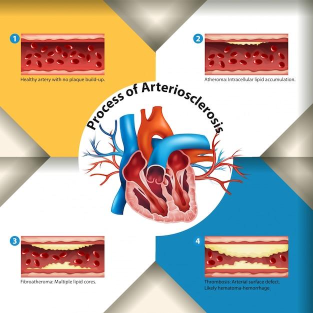 Processus de l'affiche de l'artériosclérose Vecteur Premium
