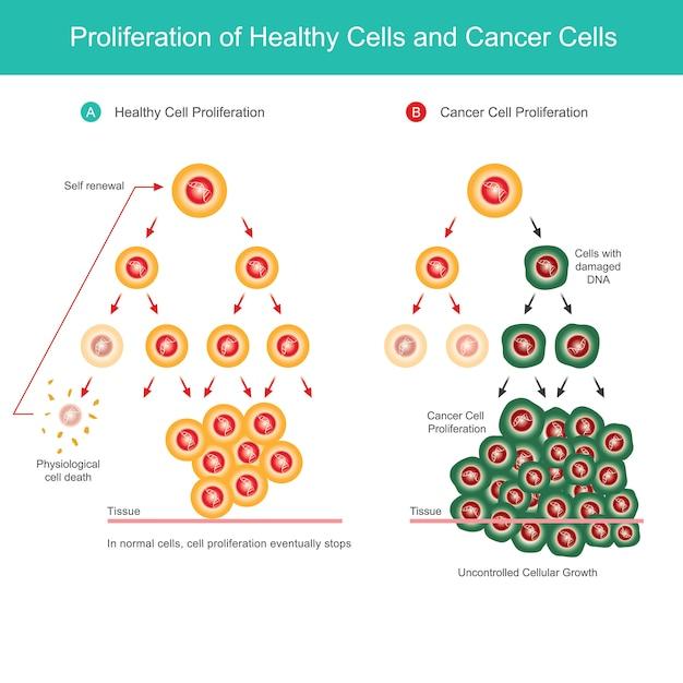 Prolifération Des Cellules Saines Et Des Cellules Cancéreuses. Illustration De Comparaison De La Prolifération Cellulaire Normale Et De La Prolifération Des Cellules Cancéreuses Dans Le Corps. Vecteur Premium