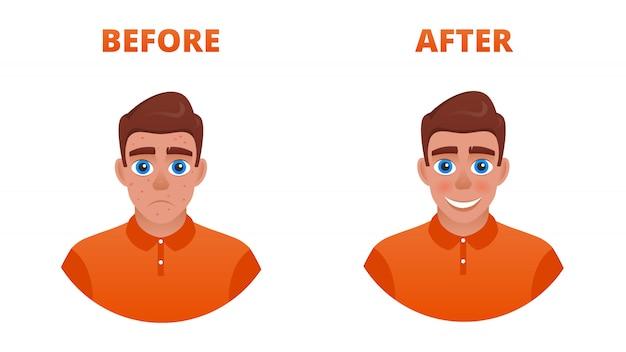Le résultat du traitement de l'acné. un gars triste avec l'acné devient heureux sans. Vecteur Premium
