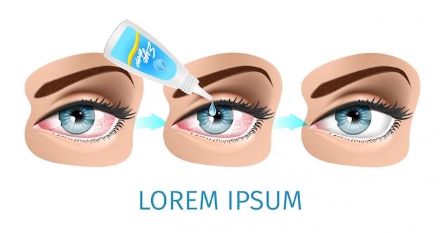Schéma du syndrome de l'oeil sec Vecteur Premium