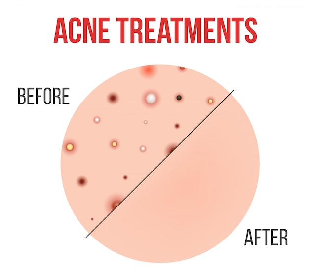Types d'acné, boutons, pores de la peau, points noirs. Vecteur Premium
