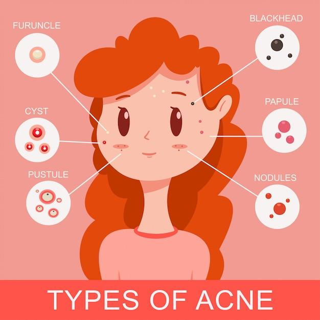 Types d'infographie de l'acné. jolie jeune fille avec des boutons. illustration de concept médical plat vecteur de dessin animé. Vecteur Premium