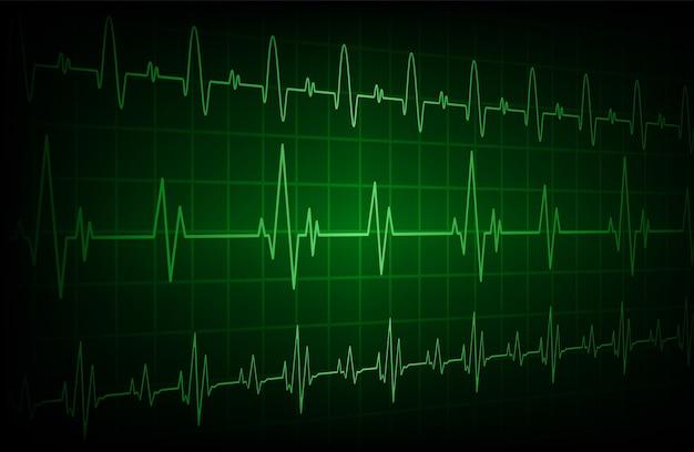 Vert cardiofréquencemètre avec signal. Vecteur Premium