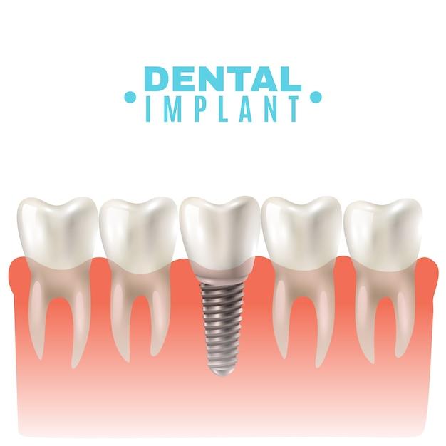 Vue de côté du modèle d'implant dentaire Vecteur gratuit