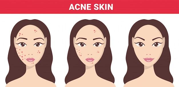 Acné, problemas de la piel, etapas del acné. acné piel de mujer a pasos claros. Vector Premium