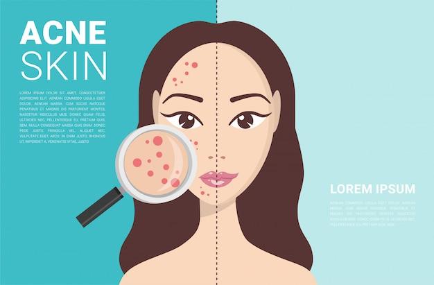 Acné, problemas de la piel, etapas del acné. Vector Premium