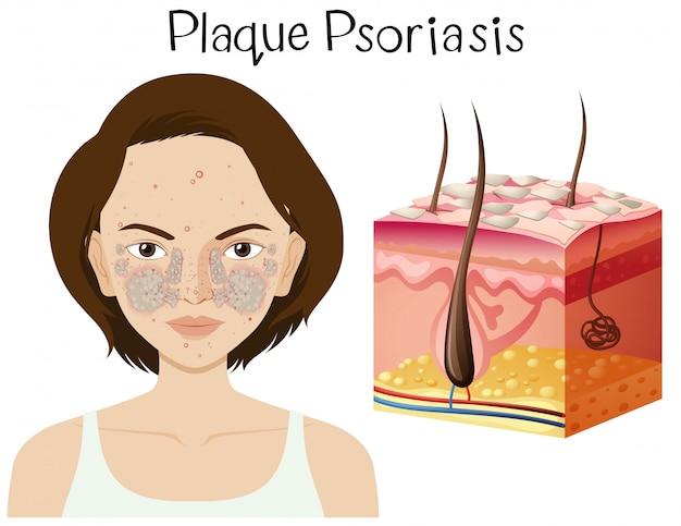 Anatomía humana de la psoriasis en placa   Descargar Vectores Premium