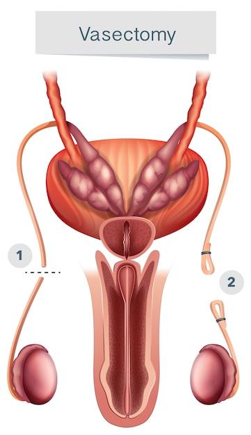 Anatomía humana de la vasectomía en el fondo blanco | Descargar ...