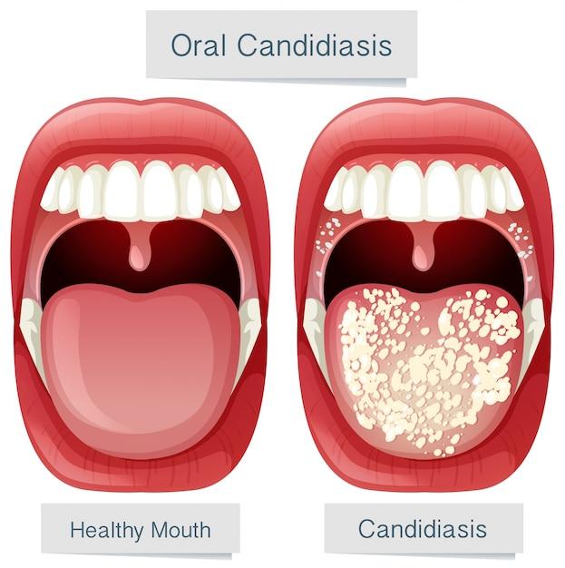 Anatomía oral de la boca candidiasis oral   Descargar Vectores Premium