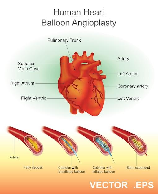 Angioplastia de globo corazón humano Vector Premium