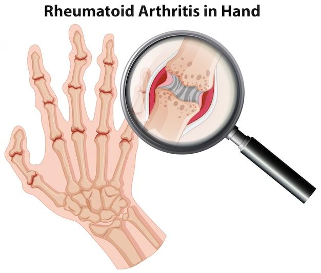 Artritis reumatoidea de la anatomía humana en la mano vector gratuito