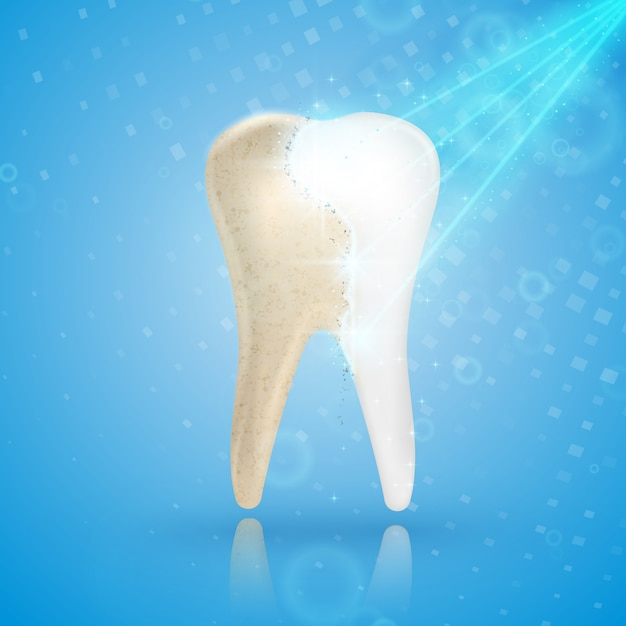 Blanqueamiento dental concepto 3d Vector Premium
