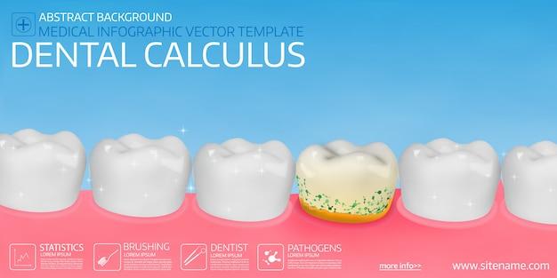 Cálculo dental. Vector Premium
