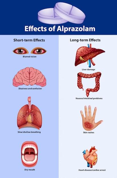 Cartel científico sobre los efectos del alprazolam. vector gratuito