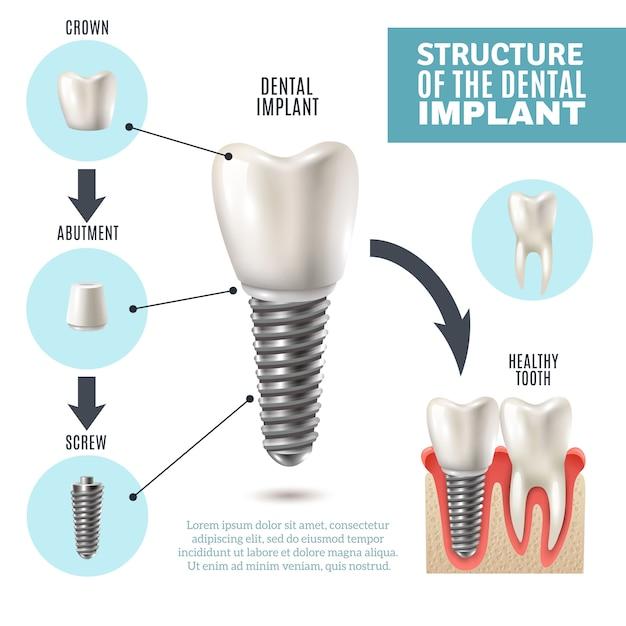 Cartel de infografía médica de la estructura del implante dental vector gratuito