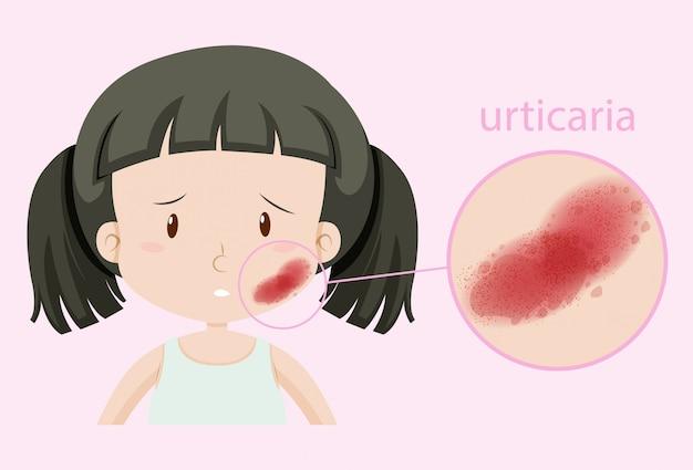 Chica con urticaria en la cara vector gratuito