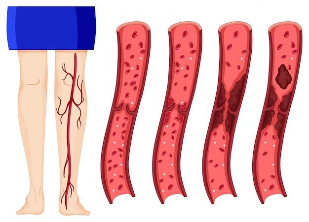 Coágulo de sangre en piernas humanas. vector gratuito