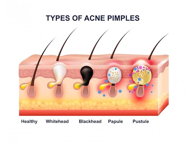 Composición de la anatomía del acné de la piel vector gratuito