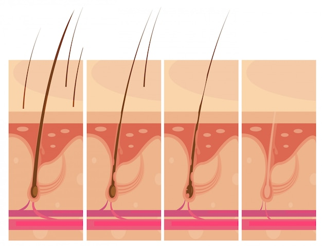 Conjunto de composiciones conceptuales de storyboard de pérdida de cabello. vector gratuito