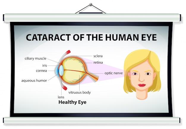Diagrama De La Catarata En El Ojo Humano Descargar Vectores Premium