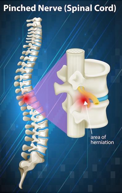 Diagrama del nervio pellizcado en la médula espinal | Descargar ...