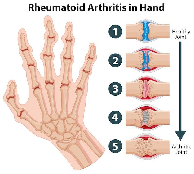 diagrama que muestra la artritis reumatoide en una mano descargar vectores gratis hand icon vector png hand icon vector download