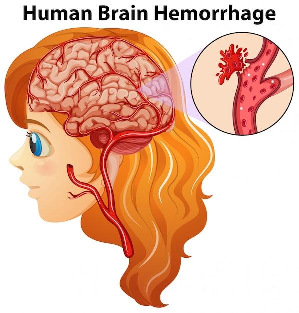 Contemporáneo Etiquetar El Diagrama De La Anatomía Del Cerebro ...