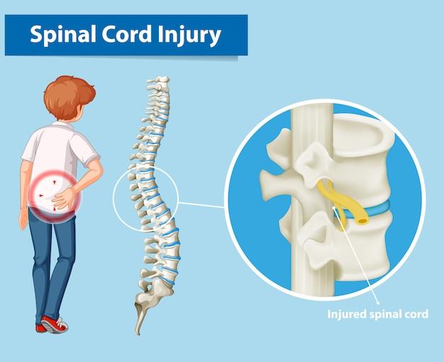 Diagrama que muestra la lesión de la médula espinal vector gratuito