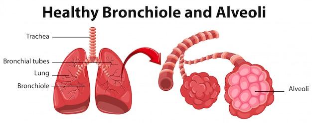 Diagrama que muestra los bronquiolos y alvéolos sanos | Descargar ...