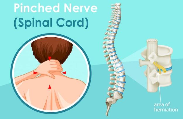 Diagrama que muestra la médula espinal vector gratuito
