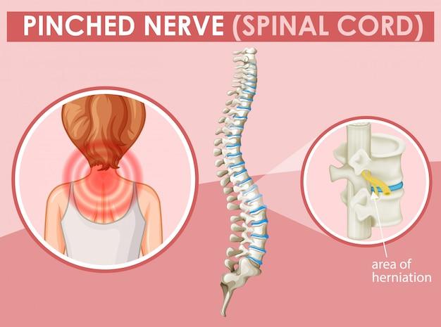Diagrama que muestra nervio pellizcado en humanos vector gratuito