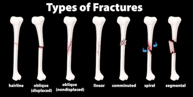 Diagrama de tipo de fracturas vector gratuito