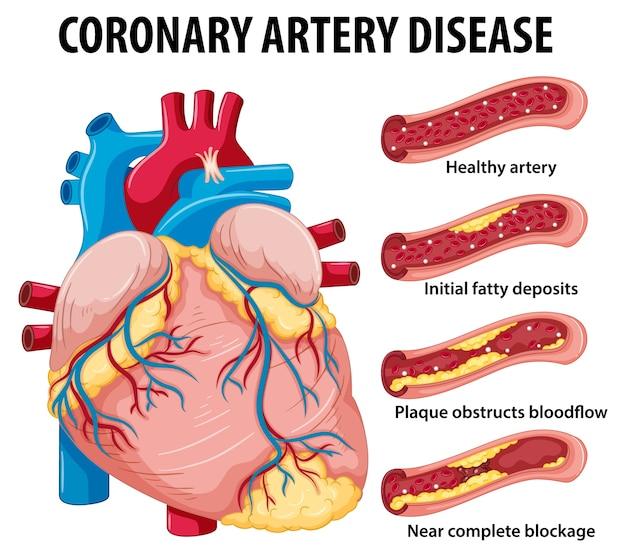 Enfermedad de las arterias coronarias para la educación sanitaria infografía vector gratuito