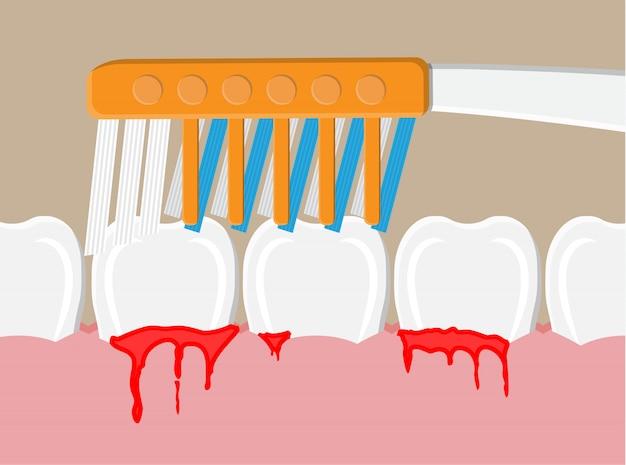 Enfermedad periodontal, sangrado de las encías Vector Premium