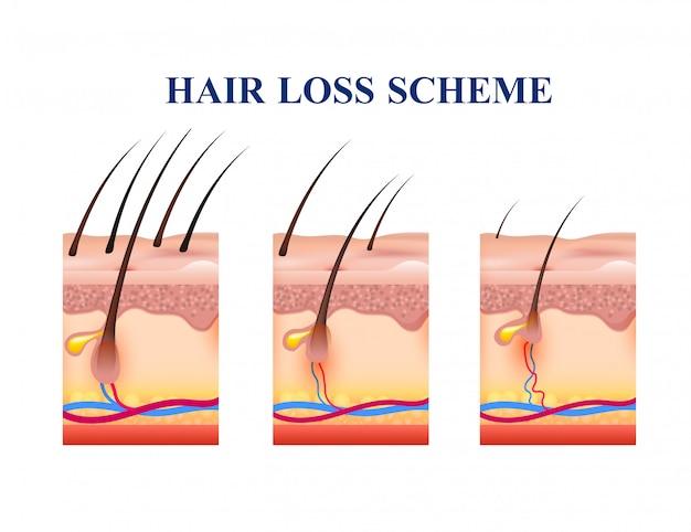 Esquema de pérdida de cabello vector gratuito