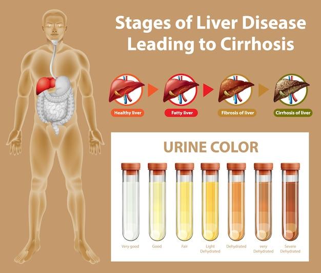 Etapas de la enfermedad hepática que conducen a la cirrosis vector gratuito
