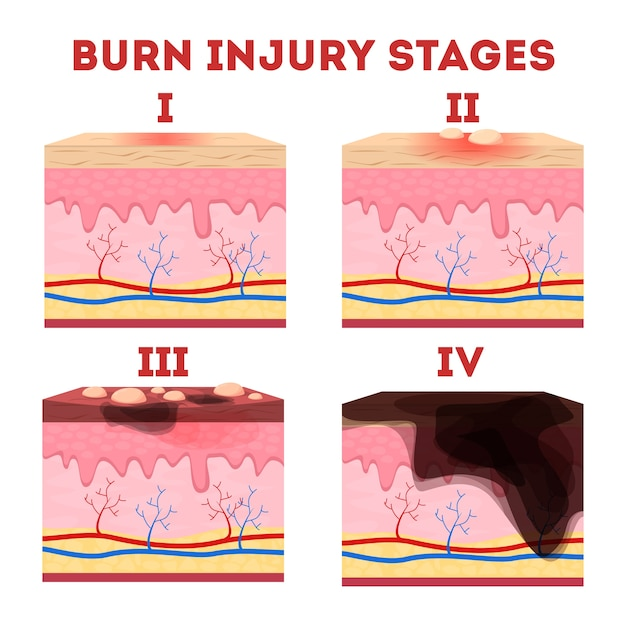 Etapas de las lesiones por quemaduras cutáneas. anatomía de la piel. Vector Premium