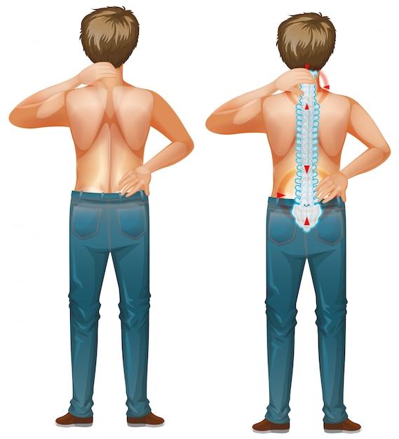 Hombre humano con dolor de espalda vector gratuito