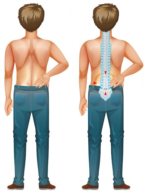 Hombre mostrando dolor de espalda sobre fondo blanco. vector gratuito