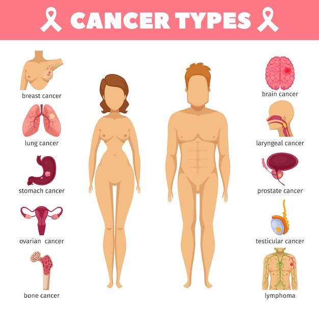 Iconos planos de tipos de cáncer vector gratuito