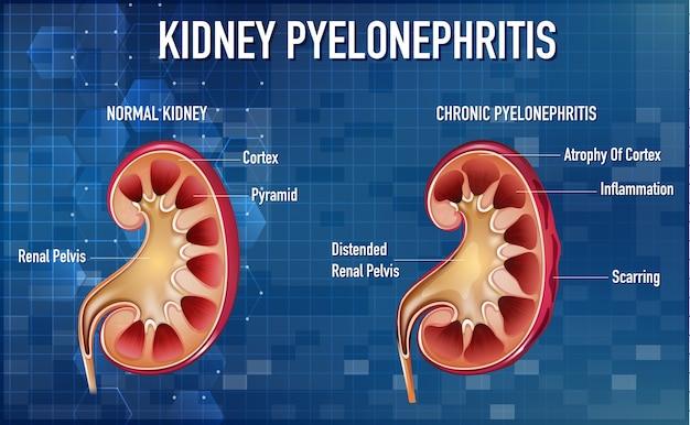 Ilustración informativa de pielonefritis vector gratuito