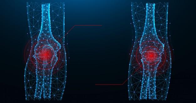 Ilustración de vector poligonal azul dolor en las articulaciones del codo Vector Premium