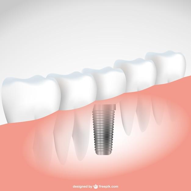 Ilustración vectorial implante de diente Vector Gratis