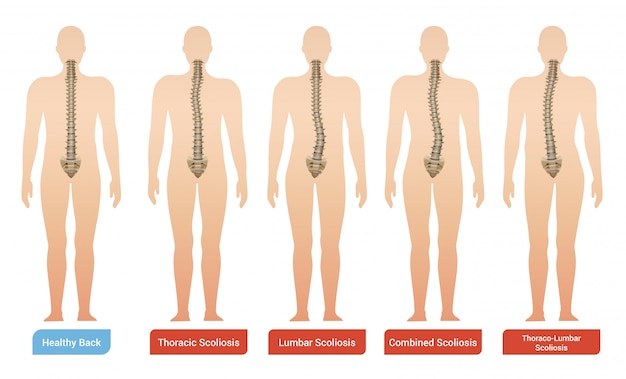 Imágenes de infografía médica de escoliosis de curvatura espinal con siluetas de cuerpo humano con columna vertebral y texto vector gratuito