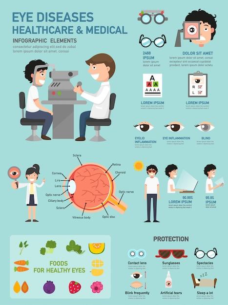 Infografía de enfermedades oculares Vector Premium