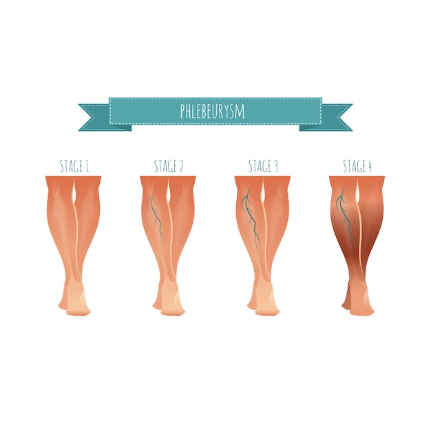 Infografía de flebología, tratamiento de venas varicosas. ilustración de la etapa de las enfermedades venosas Vector Premium