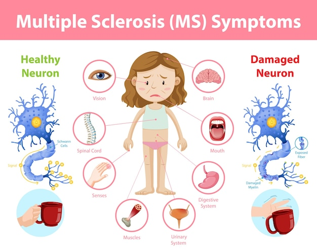 Infografía de información de síntomas de esclerosis múltiple (em) vector gratuito